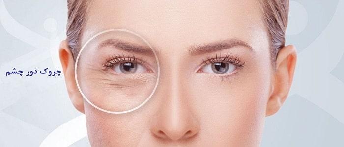 0y1p_درمان-چین-و-چروک-دور-و-زیر-چشم-min.jpg (700×300)