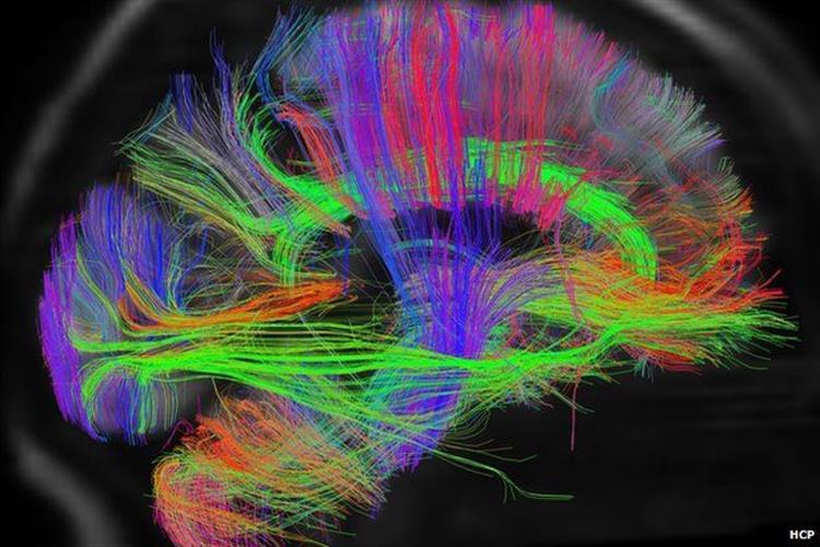 افسردگی اتصالات مغزی را تغییر میدهد