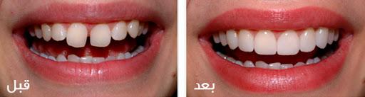 ونير و لومينيرز دندان