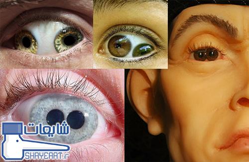 تصاویر بیماری نادر دو عنبیه ای یا Pupula Duplex ! / شایعه ۰۵۹۹
