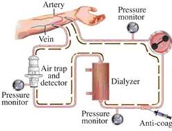 bf3q bme91.ir a5sd456 - بررسی تخصصی دیالیز(Dialysis)