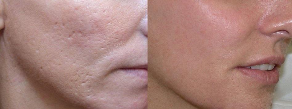 Image result for لیزر درمانی برای جوانسازی و بستن منافذ پوست