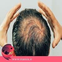 رشد و تقویت مو سر در بخش مقالات ماسیا