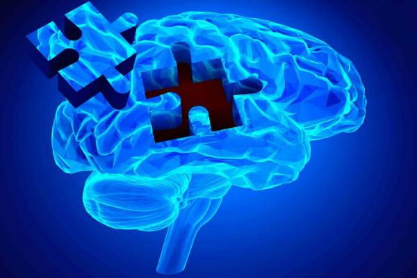 شناسایی زودهنگام آلزایمر با استفاده از هوش مصنوعی ممکن شد