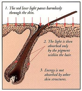 [عکس: kyfl_laser_hair_diagram.jpg]