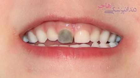 خاکستری شدن دندان بر اثر ضربه به دندان