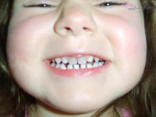 دندان زرد شده پس از ضربه