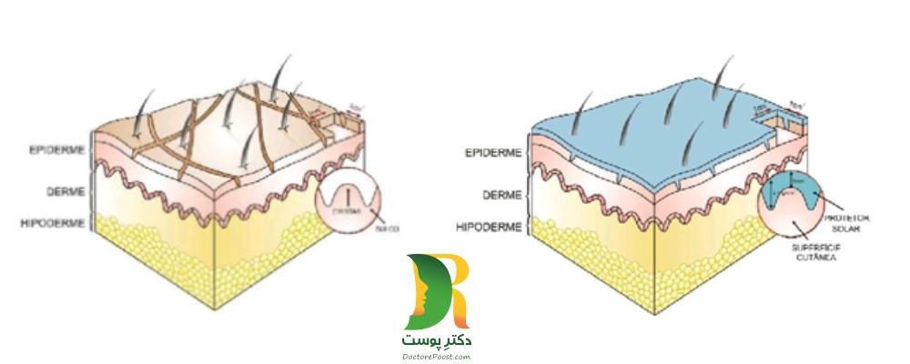 شکل شماره 2: پرکردن ناهمواری های سطح پوست