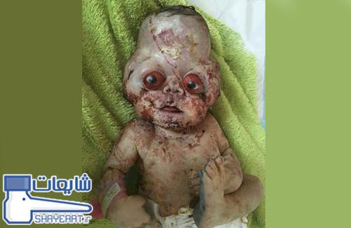 تولد نوزادی با چهره ای عجیب در مازندران ! / شایعه ۰۵۸۰