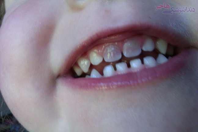 تیره تر شدن دندان پس از ضربه به دندان