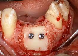 طرح لبخند یا خط لبخند  دندان