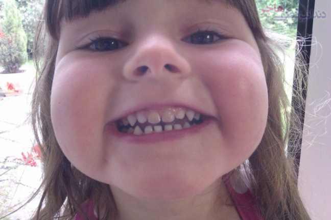 قرمز شدن دندان پس از ضربه خوردن