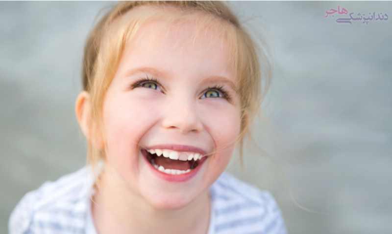 تغییر رنگ و سیاه شدن دندان در کودکان