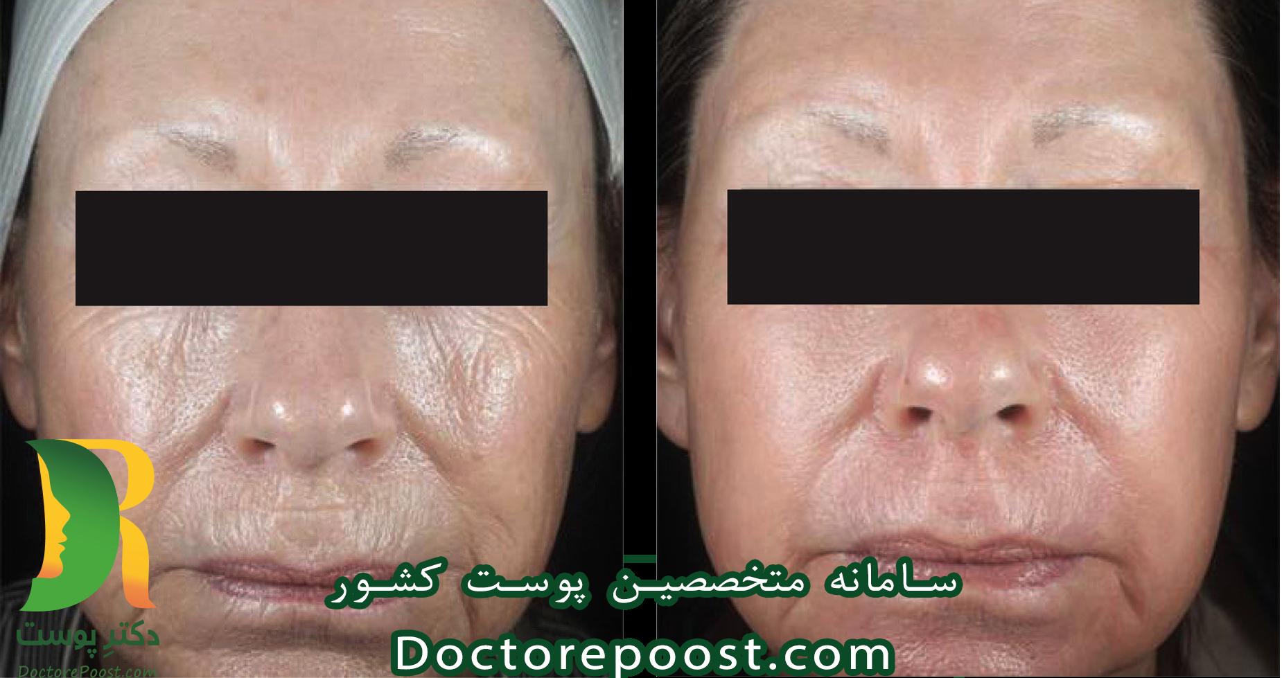 5 معجزه ی لیزر پوست لیزر پوست صورت لیزر موهای زائد لیزر جوانسازی پوست عوارض لیزر پوست لیزر واریس