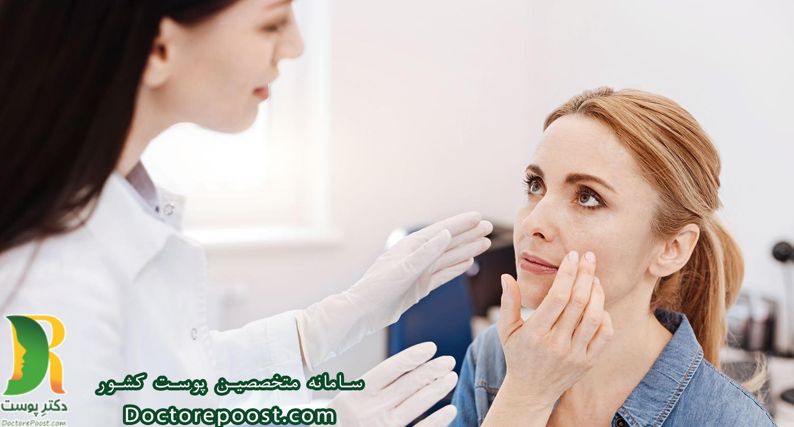 آکنه های دوران جوانی  جوش صورت جوش چیست درمان جوش صورت