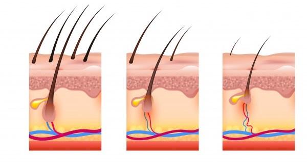 z5g_hair-loss-scheme_1284-25923.jpg (600×318)